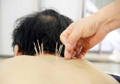 Một số lưu ý khi áp dụng phương pháp chữa thoái hóa đốt sống cổ