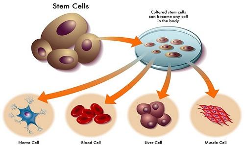 Tim hiểu quy trình chữa thoát vị đĩa đệm bằng tế bào gốc