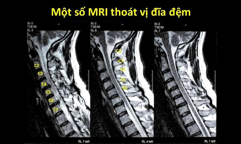 Chụp MRI thoát vị đĩa đệm có chính xác không?