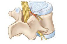 Đau rễ thần kinh cột sống là gì?
