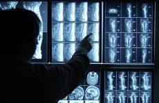 Hình ảnh MRI thoát vị đĩa đệm