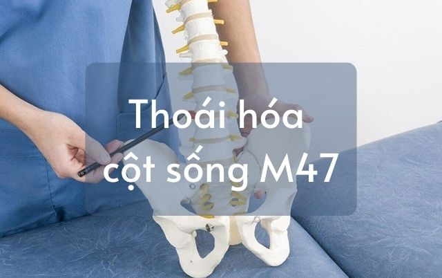 Chẩn đoán thoái hóa cột sống M47