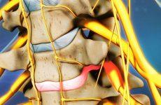 Tìm hiểu thoát vị đĩa đệm chèn ép dây thần kinh
