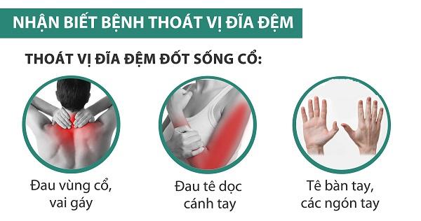 Các triệu chứng thoát vị đĩa đệm cổ thường gặp